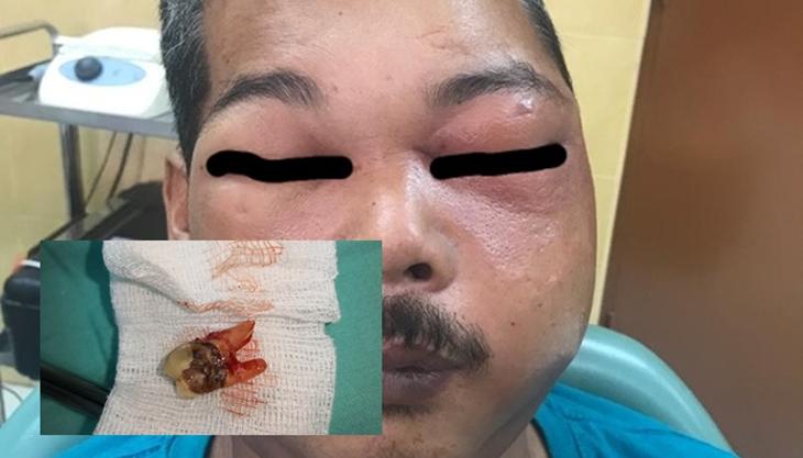 Sakit Gigi Letak Minyak Motor 6