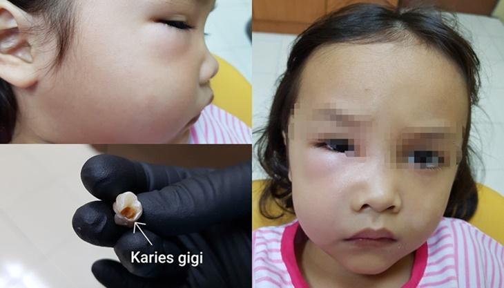 Sakit Gigi Muka Bengkak 4