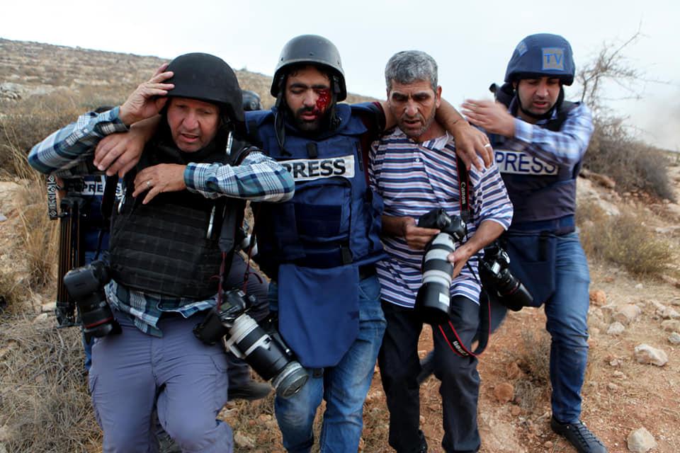 Solidariti Buat Wartawan Buta Dibedil Israel 3