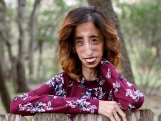 Wanita Yang Jadi Mangsa 'Body Shaming' Seluruh Dunia 1