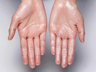 Simptom Tangan Berpeluh, Bahaya Atau Tidak 1