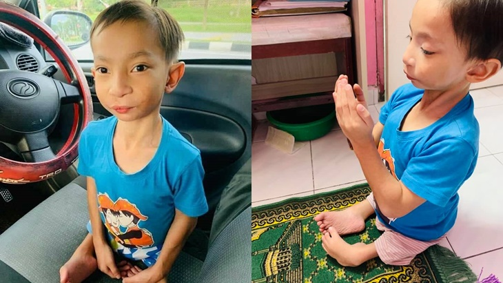 Dilahirkan Tanpa Betis, Kisah Anak Istimewa Minta Kaki Sempena Hari LahirIni Buat Netizen Sebak 4