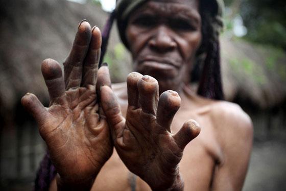 Potong Anggota Badan Sebagai Ekspresi Rasa Sedih, Kenali Puak Dani Dari Indonesia