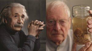 Kisah Kecurian Otak Albert Einstein 4