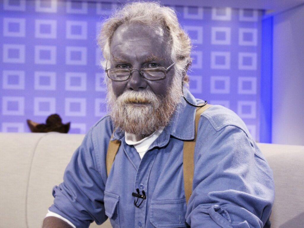 Avatar Dalam Dunia Sebenar, Kisah Lelaki Yang Kulitnya Bertukar Warna Biru 3