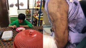 Kanak-Kanak Sindrom Down Didera Di Rumah Kebajikan Terkemuka