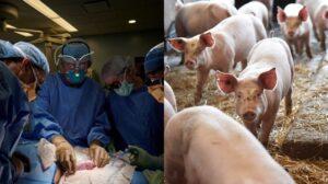 Berjaya Pemindahan Buah Pinggang Babi Ke Manusia